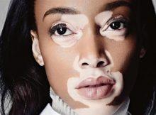 vitiligo-lekeleri[1]